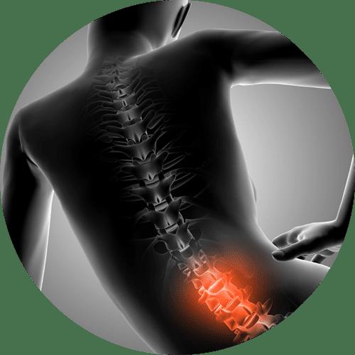 | Terapia Antalgica | CMLS